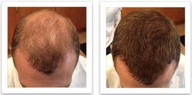 Serbuk Pelebat Rambut Botak Nipis Hair Fiber BARU