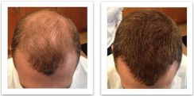 Hair Building Fiber Serbuk Rambut Botak Nipis Baru