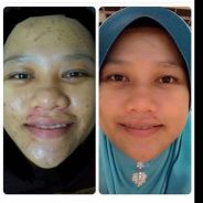 PERLASHINE (skin whitening booster)