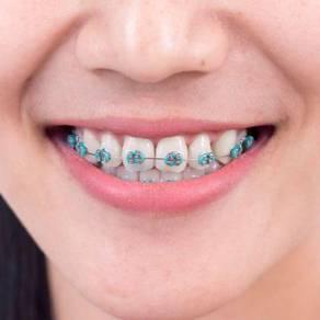 Pemasangan braces kualalumpur