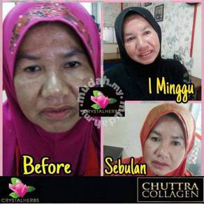 Chuttra collagen