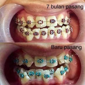 Pemasangan braces kemas dan santek