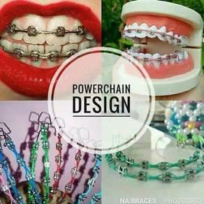Na braces